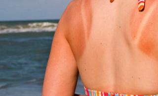 Top 10 Tips to Protect your Skin from Sunburn