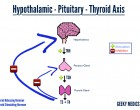 Top 7 advices for Hypothyroidism Patients