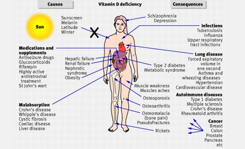 Top 7 Points -Why You Need Vitamin D