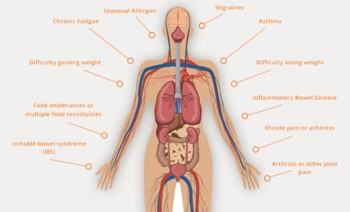 Top 9 issues related to Irritable Bowel Syndrome