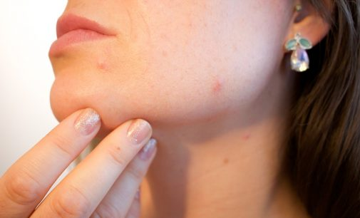How to get rid of acne and pimples?