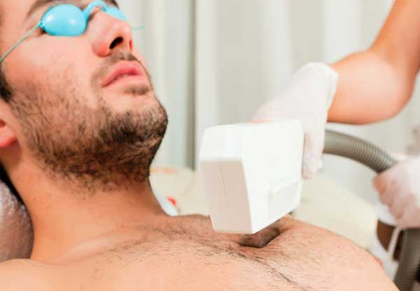 Laser-Hair-Removal-is-not-for-men