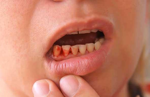 Dont-brush-when-gums-are-bleeding